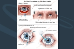1 eye-burn-injury-corneal-transplant