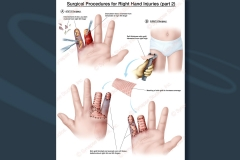 11-finger-debridement-skin-graft