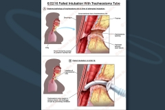 7 intubation-tracheal-scarring tracheostomy